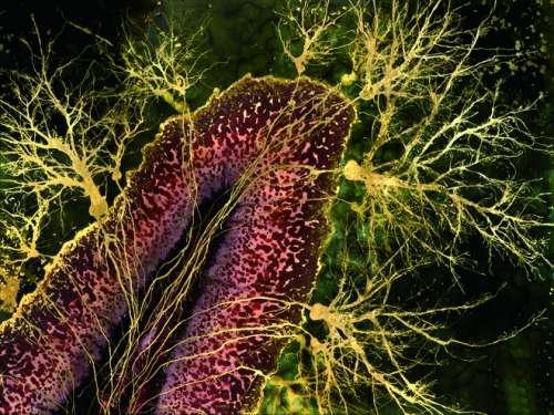 其实,它们的原型比植物微小得多,是人类大脑细胞.