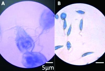鞭毛虫显微镜_十分钟制作纸质显微镜-青年参考